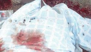 Detail of the body of Hassan Hurshe. (Morning Star News photo)