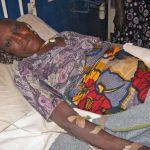 Asing Alamba, 70, sustained bullet and machete wounds in the Shonong attack.