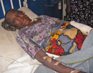 Asing Alamba, 70, sustained bullet and machete wounds in the Shonong attack. (Morning Star News)