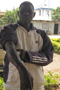 Scars on Adamu Musa, shot by Boko Harm in attack on I Gava West village, Gwoza, Borno state in 2013. (Morning Star News)