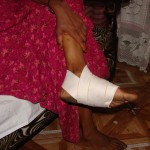 Bound wound of Somali widow attacked in Kenya for her faith. (Morning Star News)