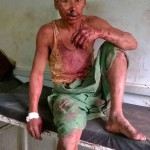 Unidentified victim of attack in Assam, India. (Morning Star News)