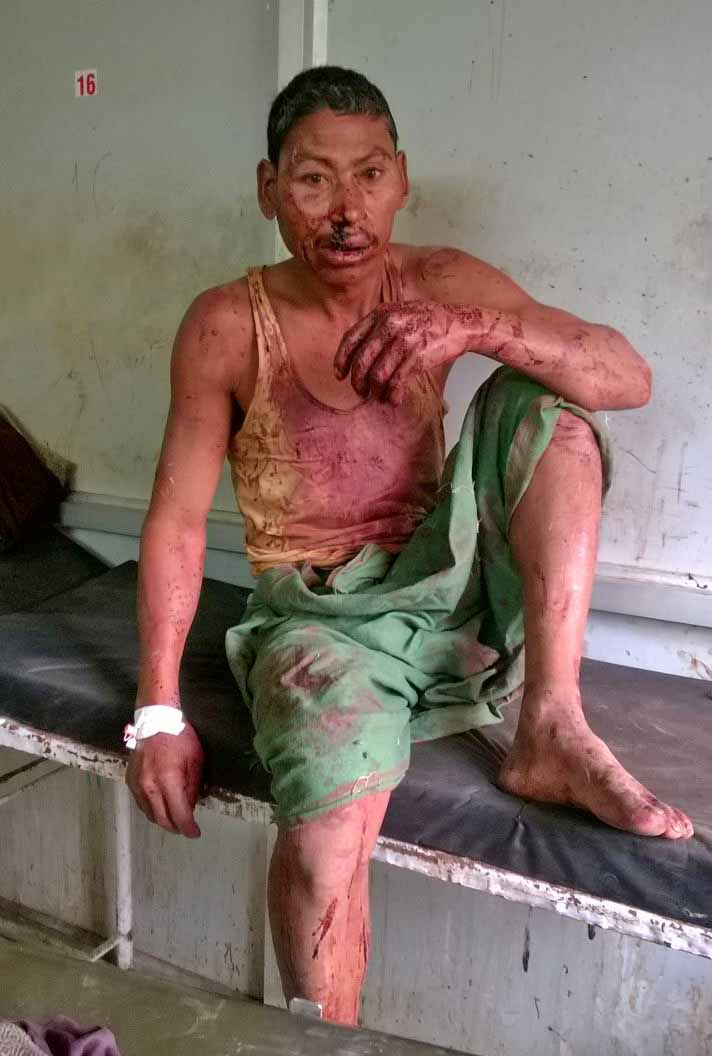 Hindu Extremist Attack In Assam State India Depletes