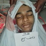 Body of young Christian, Wasif Masih, at hospital morgue. (Morning Star News)