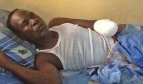 Baptist Pastor Loses Hand to Muslim Fulani Herdsman in Nasarawa State, Nigeria