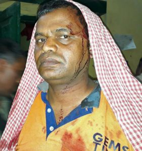 Pastor Sikhandar Kumar after assault in Jadhua, Bihar state. (Morning Star News courtesy of family)