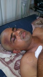Pastor Banothu Sevya after attack by Hindu extremists in Telangana state, India. (Morning Star News courtesy of family)