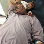 Injured member of King Jesus Church in Burewala, Punjab Province, Pakistan. (Morning Star News)