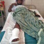 Kolhapuri Immanuel, 20, after surgery for broken foot bone. (Morning Star News)