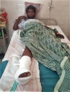 Kolhapuri Immanuel, 20, after surgery for broken foot bone. (Morning Star News)