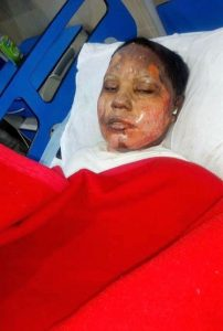 Asma Yaqoob succumbed to her injuries on Sunday night (April 22) after attack last week. (Morning Star News).