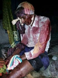 House church pastor Madira Koti Reddy was attacked with an axe. (Morning Star News)