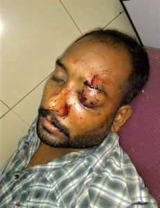 Vikram John was beaten by Muslim neighbors in Karachi, Pakistan. (Morning Star News)