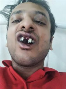 Abhishek Mangala lost teeth in assault by Hindu extremists in Sohna, Haryana state, India on Sept. 22, 2019. (Morning Star News)