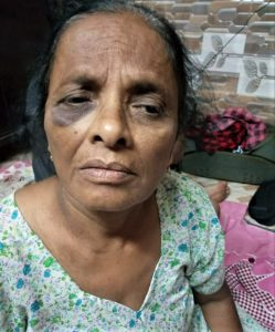 Sarla Mangala, 65, was among those assaulted in HIndu extremist attack in Sohna, Haryana state, India on Sept. 22, 2019. (Morning Star News)