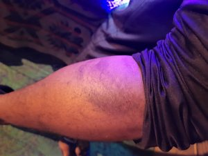 Bruising on pastor Pastor Indresh Kumar Gautam in Kunda area, Uttar Pradesh state, India. (Morning Star News)
