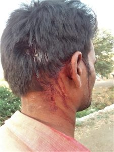 Pastor Lalu Kirade was attacked in Madhya Pradesh, India for filing police report on prior assault. (Morning Star News)