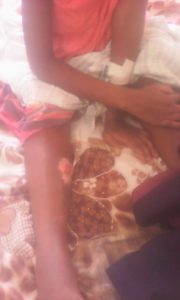 Some of the burns on Rehema Kyomuhendo, recovering in hospital in Mbale, Uganda. (Morning Star News)