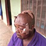 Yusuf Pam sustained cuts from machete attack by Muslim Fulani herdsmen on April 26, 2020 in Plateau state, Nigeria. (Morning Star News)