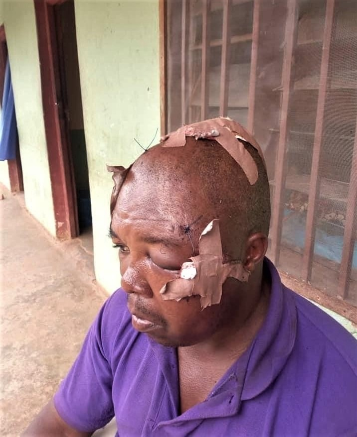 Nigerian Christian Man Hospitalized After He and His Wife Are Ambushed With Machetes by Fulani Herdsmen