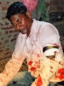 Pastor Dinesh Kumar in hospital in Mau, Uttar Pradesh, India. (Morning Star News)
