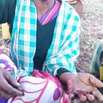 Madkam Sanni was attacked with a sickle in Chhattisgarh state, India. (Morning Star News)