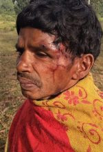 Madvi Muka sustained serious head wounds in attack in Sukma District, Chhattisgarh state, India. (Morning Star News)