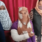 Hindu extremists broke the hand of Neha, 18, in an attack on her church in Shahjahanpur, Uttar Pradesh, India on Jan. 3, 2021. (Morning Star News)