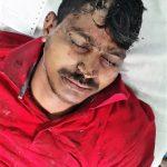Pastor Ramesh Bumbariya was attacked in Rajasthan state, India on May 18, 2021. (Morning Star News)